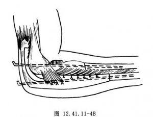 上肢石膏后托将肘关节屈曲90°、 前臂中立位固定5~6周.经X线片