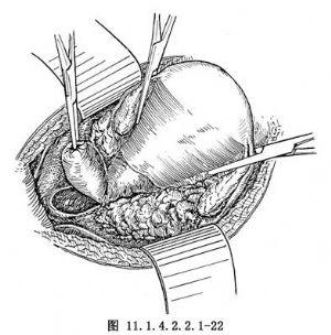 8.切除盆腔及腹膜后腹主动脉旁淋巴结   卵巢癌容易发生腹主动脉及盆
